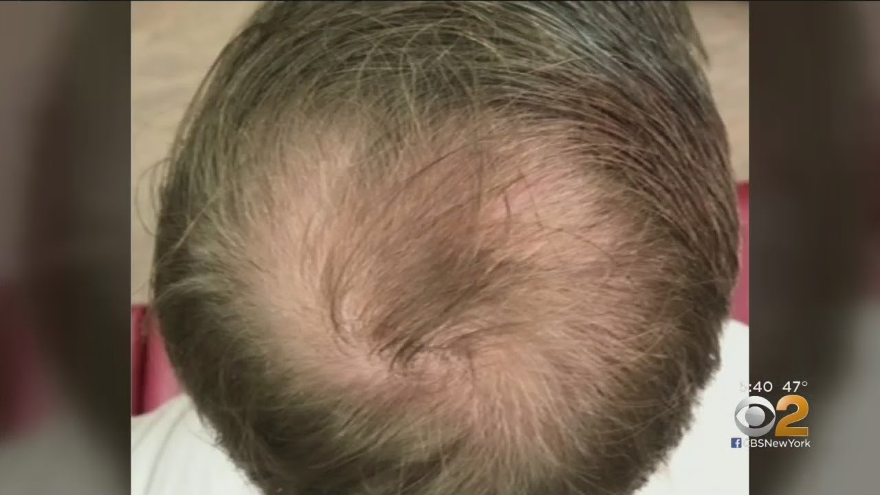 Can PRP Injections Spark Hair Growth?