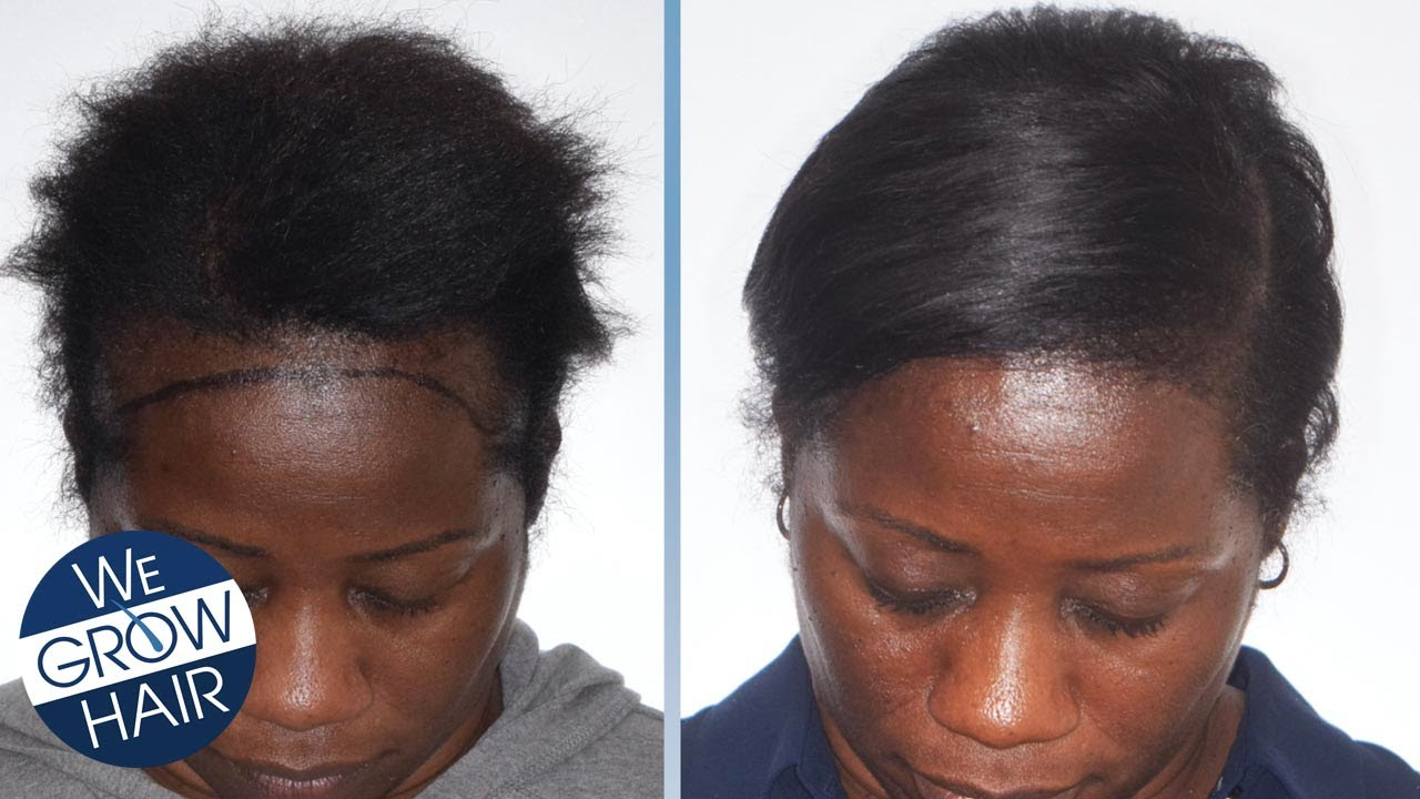 Hair Transplant for African American Women and Men
