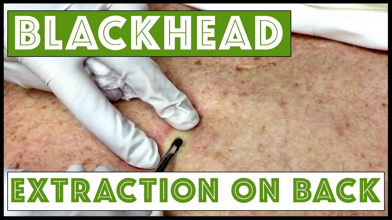 Updated blackhead cyst x2 extraction on the back! For medical