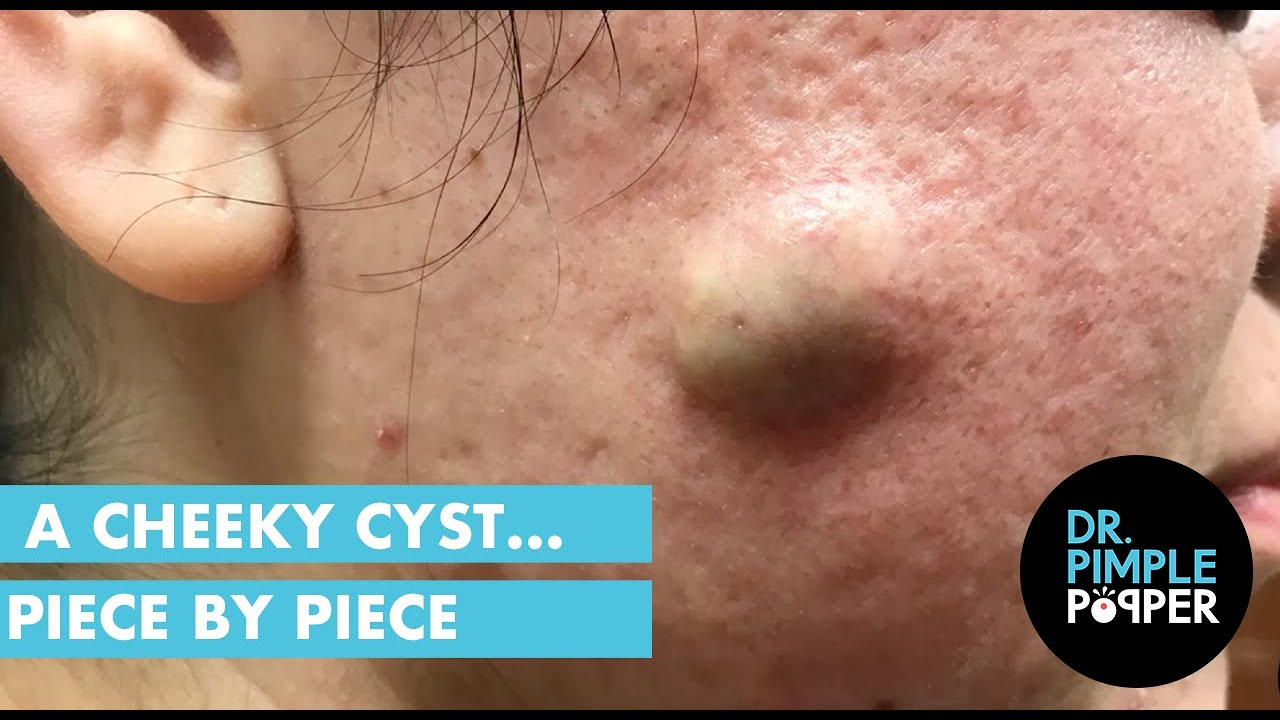 A Cheeky Cyst… Piece by Piece