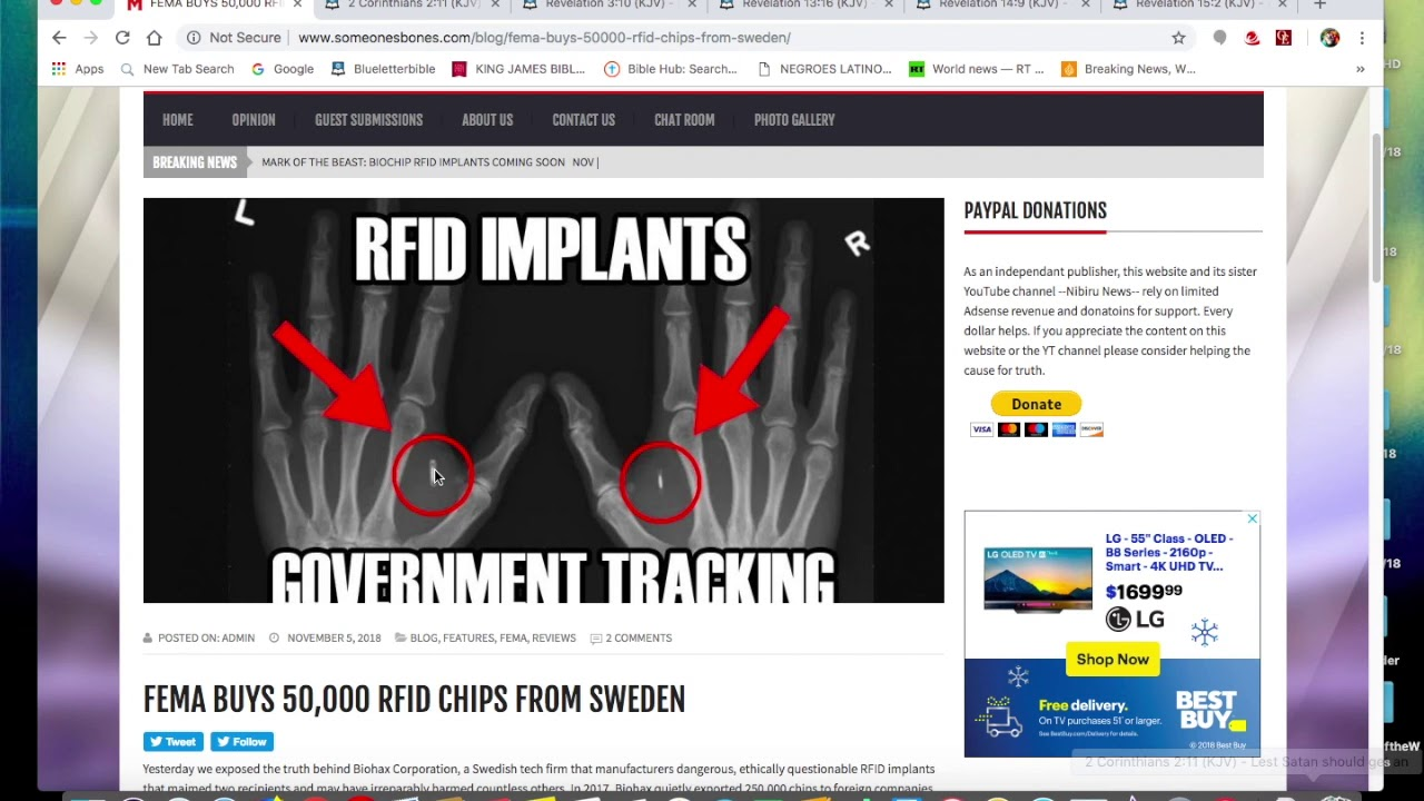 Mark of the Beast update: RFID Chip for Medical Purposes