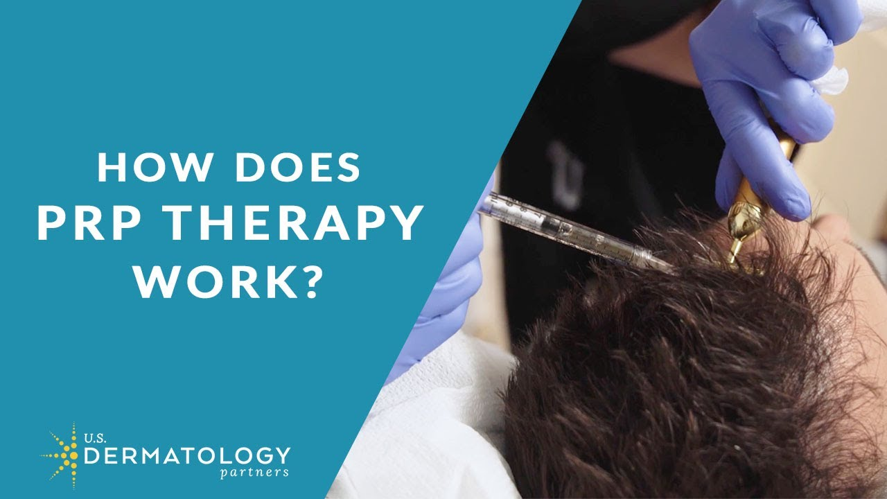 Platelet-Rich Plasma for Hair Loss | PRP Therapy in Tyler,