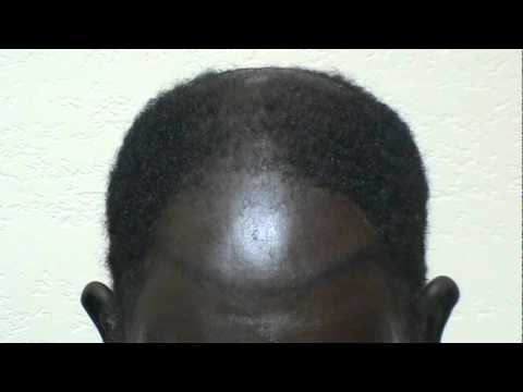 Hair Transplant Restoring Black African American Frontal Bald High Hairline